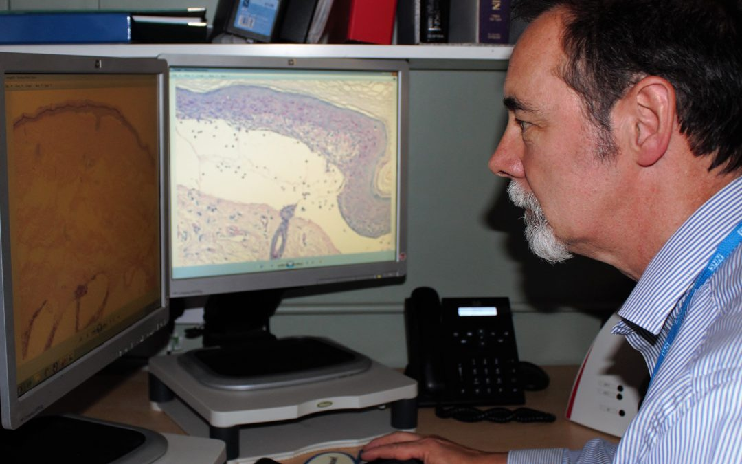Digital pathology project is under way